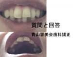 口を軽く閉じても、前歯二本が見えないように部分矯正してほしい 金額等も大まかに分かれば