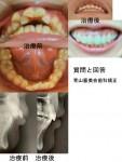 出っ歯の乱杭歯、上を抜歯し歯科矯正して 矯正前より噛み合わずガミースマイル とにかく最悪