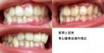 顎のズレ、顎がガクガクする、歯の中心のズレが主な悩み 矯正によって顎の歪みや非対称は治るの?費用は?