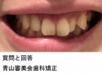 過蓋咬合な気が このせいで顔の歪みが生じているなら治したい  治療できますでしょうか