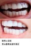過去に矯正をしたのですが若干歯戻り 上顎の歯高さをキレイにしたい また下顎の凸凹も治したい