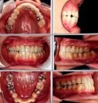 切端唆合を治し、正中線を合わせ、下の歯並びもきれい 体にとって健康な噛み合せにしたい