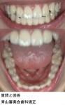 そこまでは気にしているような歯列では無いが、抜歯をしないで歯列をより綺麗に出来るのか?