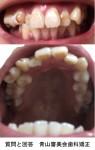 歯並びはかなり悪くガタガタ 特に正面から見た時に左側がゴチャゴチャ とにかく重なっている歯が嫌で