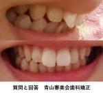 上顎の前歯2本出ている悩み 上顎だけ歯科矯正したい 上顎のみの費用は? きれいな歯並びになる?