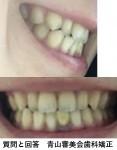 矯正の後戻りの相談 最初から矯正をやり直し?反対咬合のため矯正歯科に 全体的にも下の歯が出て