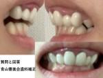 10年前 前歯6本をセラミックで治しましたが 内側に入りすぎ 裏側矯正で前歯を下げる事は?