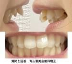 上の前歯2本出てるのが一番今気になり 部分矯正だと全体的に出っ歯になると言われた