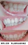 矯正後 装置を外したら歯が内向きに この歯の角度は治せない? 顎が出てるように見えて