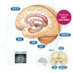 アルツハイマー認知症への新たな試み