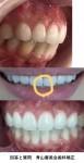 前歯6本をセラミック矯正にしたら歯の間に隙間ができ不格好 前歯を矯正すれば前歯の隙間も埋まる?