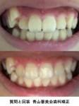 八重歯を抜くか抜かないか迷って 抜いたら顔の形が変わる? 矯正だといくら? 一部分だけ矯正できる?