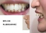 コンプレックスで相談 17歳 出っ歯 歯のズレ1cm 幼少期の指しゃぶり 外科的矯正の値段は
