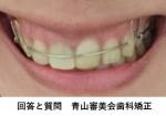 数年前に矯正終了 現在リテーナー 右側が下がって顎もずれて 再矯正で治る?外科手術も必要?