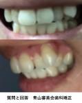 八重歯の矯正の費用と期間は? この八重歯を抜いて他の歯の歯並びを軽く整える程度は可能?
