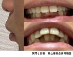 下顎の歯並びも悪いですが上顎が出っ歯に 上顎の裏側矯正だけで引っ込めることは可能?