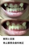 受け口と八重歯に悩み 費用は抑えたい  外科手術も避けたい どのような治療と費用が?