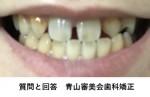 すきっ歯で悩んで 生まれつき2番の歯が両方なくそのため前歯が開き マウスピース治療は可能?