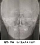 顎の調子が悪く レントゲン写真は右顎関節が食い込んで見える? 顎関節症ですか?