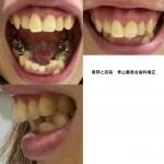 歯の矯正を検討 手術が必要?不要? 出っ歯とガミースマイルと歯の中心のズレが気に