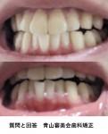 下の前歯の歯茎が退縮? 最近下あごに親知らず 治療する際は、矯正歯科か一般的歯科?