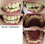 大学生 歯並びが悪いせいでうまく笑えない 顔の右側口角が上がらず 歯科矯正をする場合、抜歯は必要?