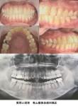 10年前の歯列矯正 後戻りで再度矯正を希望 歯根が短い(歯根吸収)為、再矯正は出来ないと