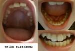上の前歯が気になり、八重歯も治したい 仕事は接客業 目立たない矯正を希望 治療方法や期間、料金を