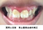 上前歯2本が大きく、出っ歯を治したい 目立たない矯正希望 半年で治りますか?
