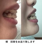 矯正中 下の歯が前に出てきてしまい受け口に 矯正の先生に治らないかもしれないと