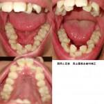 この歯並びで矯正するとすれば完治までにかかる時間と費用はどれくらいですか?