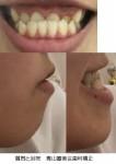高校3年 小さい頃から奥歯つけて噛むと下顎の方が出ます 受け口ですか?治すには矯正しかない?費用は?