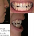 18歳 上の歯が一本足りないまま詰まっている為、正面から見るとズレ 受け口、切端咬合は外科手術無しで?
