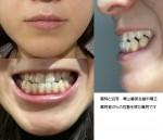 受け口で悩んで  接客をしているので短期間で治したい 外科手術が必要? 歯の裏から矯正は可能?