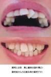 前歯の矯正を 上部中央の歯2本のうち1本が斜めに生えて 隣の歯の後ろに入り込んでいる  治療できる?