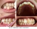 上の前歯な歯並びだけ治したい 部分矯正が可能? 上の前歯のみの矯正を希望