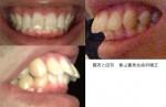 30代  出っ歯が気になる  治療期間を短く 営業職の為 矯正が目立つ治療は避けたい  前歯の部分的な治療は?