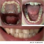 反対咬合を治したい 写真は顎変形症ですか? 外科手術は怖い ワイヤー矯正でどれくらい?