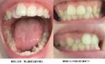 上前歯の凹みがコンプレックスで、左右の笑顔の印象が変わってしまうことが悩みです。