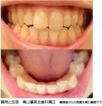 前方の下の歯8本の突出や軽いガタガタが気になっています。この場合、部分矯正は適用でしょうか?