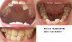 反対咬合と歯並びが気になります。特に反対咬合を治したい。大体の治療費や方法や期間等を教えて頂きたい
