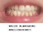 下顎が左に歯1個分ずれて 顎変形症の手術も検討したが、コンプレックスで矯正治療では治せないですか?