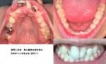 昔から歯並びが悪く、更に出っ歯です。 その上虫歯も多く、数本差し歯。ワイヤーを使った矯正は可能?