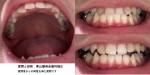 下顎前突で下の歯が前に出ている 上の歯を前に戻す矯正をしたい 方法と費用は?
