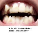 前歯が大きく開いてモノを噛むのに支障が出て困って。飛び出た八重歯と、上の前歯が出っ歯も気になり