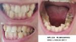 40代の下の歯の矯正は歯肉縮退やブラックトライアングルが懸念? 下の歯がガタガタ 歯肉縮退になる?