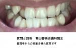 受け口が悩みで歯列矯正したいと思います 費用はどれぐらいですか? 上の歯の八重歯も抜きたい