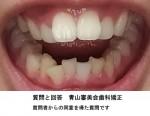 出っ歯で下はガタガタ 歯並びにコンプレックスを感じるが、矯正は痛く値段も高い 最近、顎関節症と
