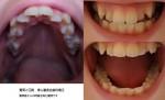 歯並びに悩んで 前歯の大きさと八重歯が気になり この歯並びだと部分矯正でマウスピース使用は?