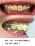 矯正をして3年半 歯科医師に何度も「口元を引っ込めたい」まだ歯の隙間が気になる 抜歯をすれば叶う?